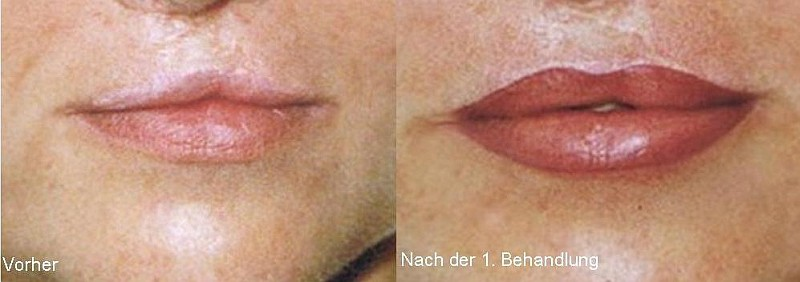 Medizinische Pigmentierung von Narben